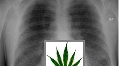 Study Finds Cannabis Effect on Lungs Not Harmful