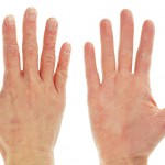 Eczema Dermatitis On Front And Back Of Hand