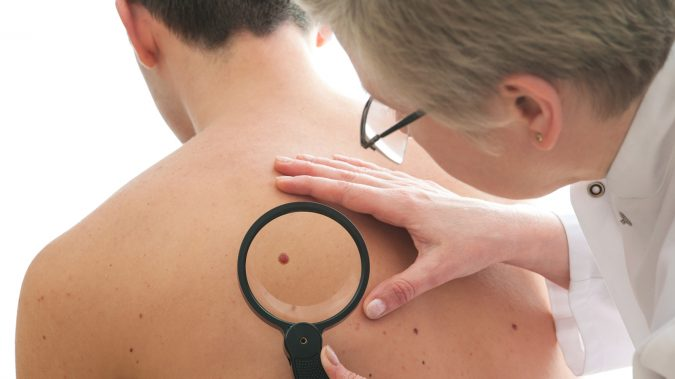 Is Cannabis Oil a Viable Treatment for Skin Cancer?