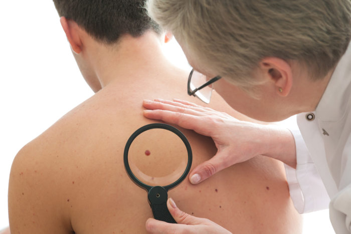 Is Cannabis Oil a Viable Treatment for Skin Cancer?