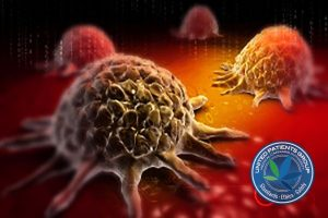 bigstock-Cancer-cell-73911256-300x188