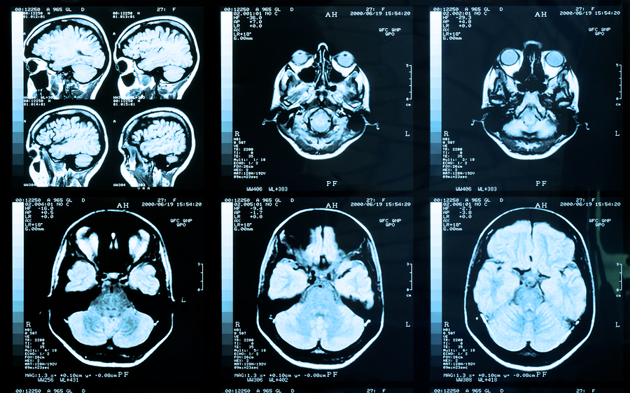Glioblastoma Multiforme and Marijuana Information: Treat Brain Cancer With Cannabis