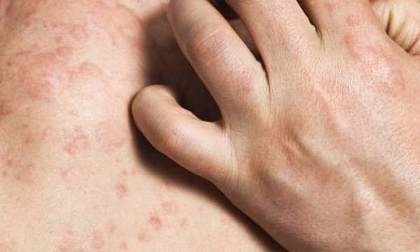 A Patients Guide for Using Medical Marijuana for Shingles