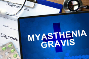 Diagnosis Myasthenia gravis and tablets.