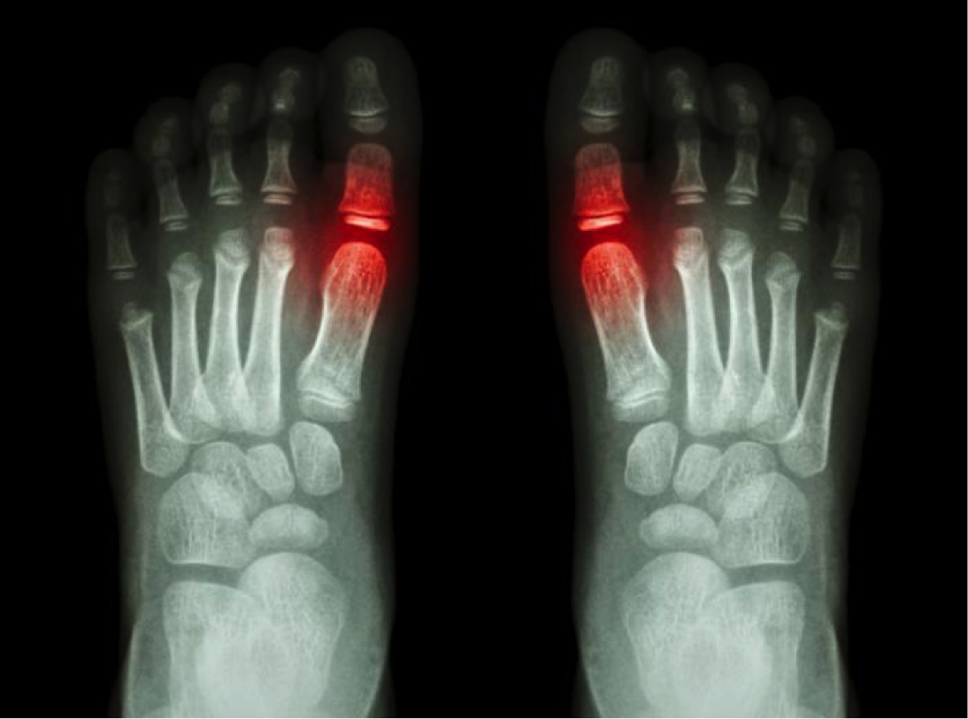 Arthropathy Gout and Marijuana Information: Treat Gout With Cannabis