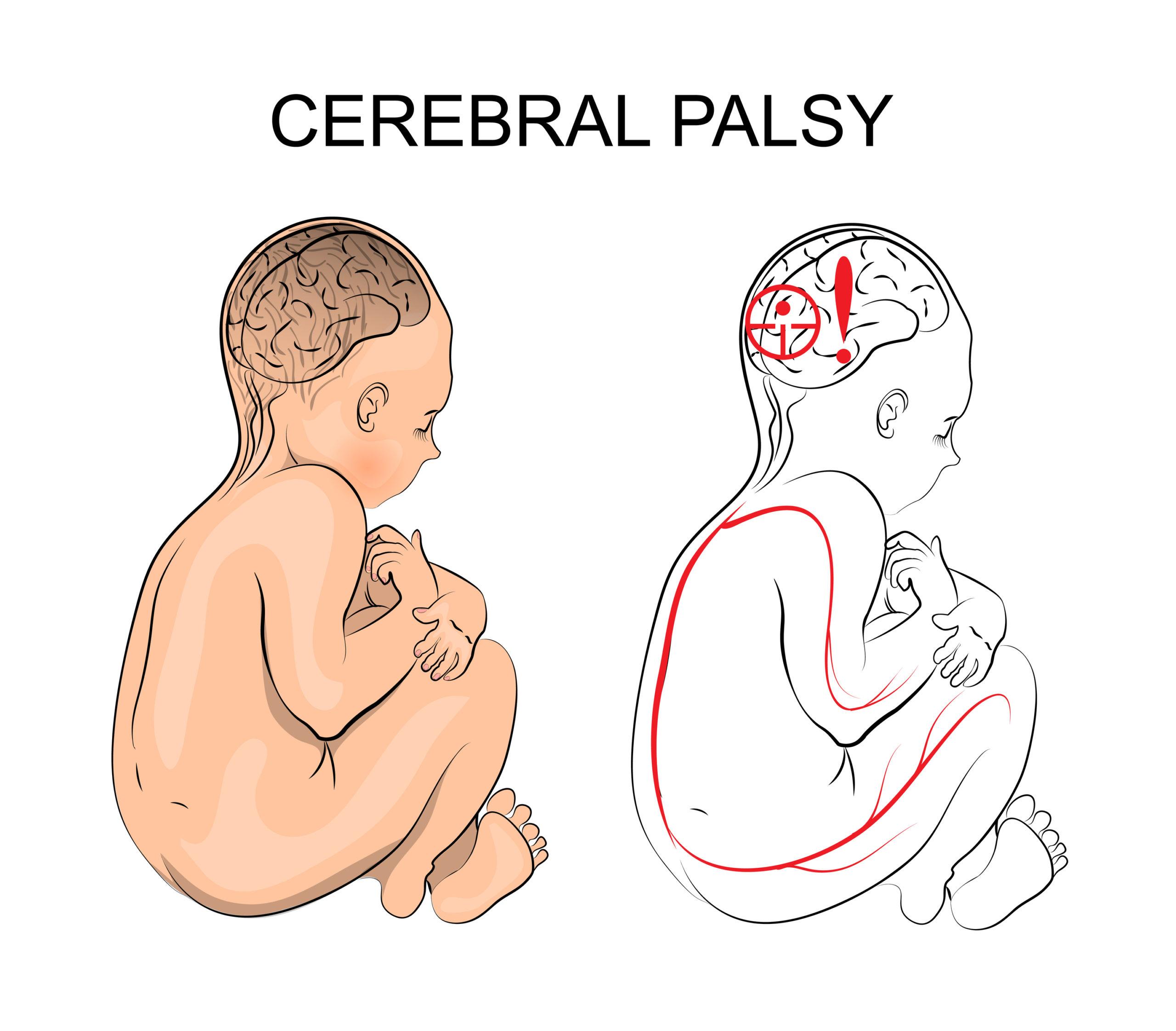 Cerebral Palsy and Marijuana Information: Treat Cerebral Palsy With Cannabis