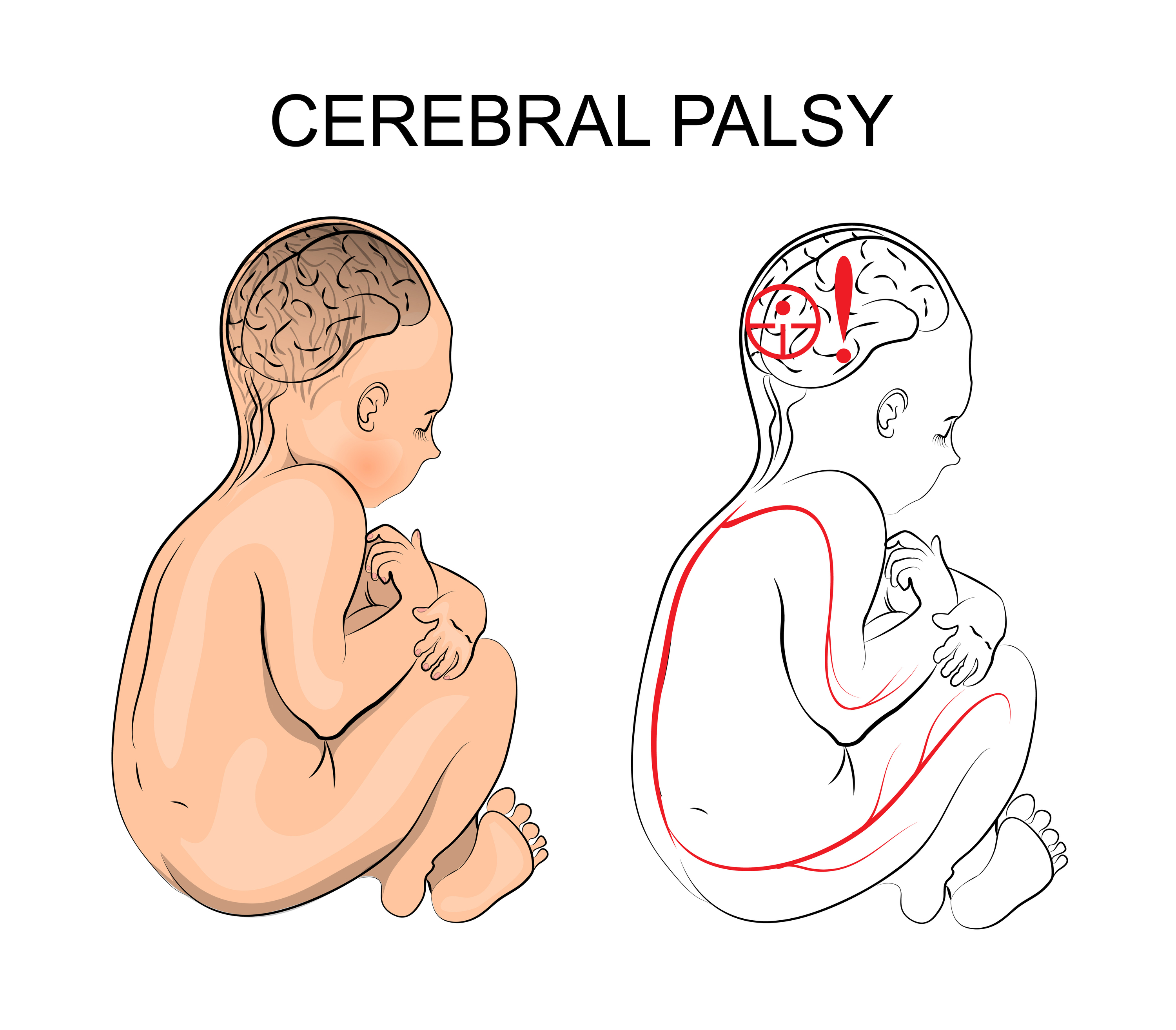 Cerebral Palsy and Marijuana Information: Treat Cerebral Palsy With Cannabis