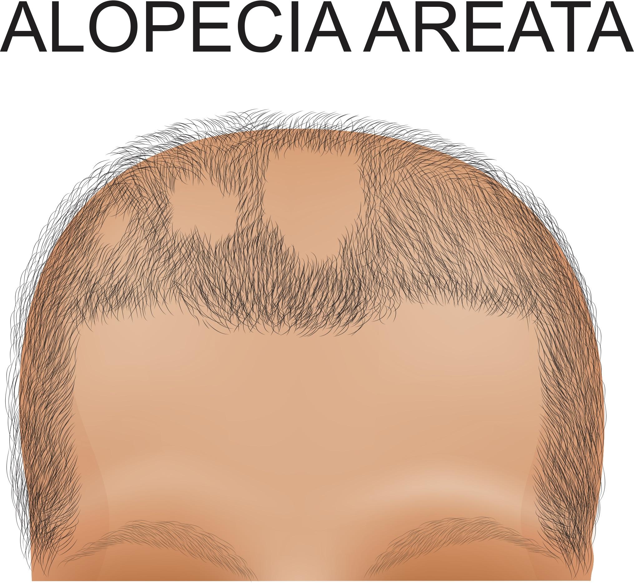Alopecia Areata & Marijuana Information: Treat Alopecia Areata With Cannabis