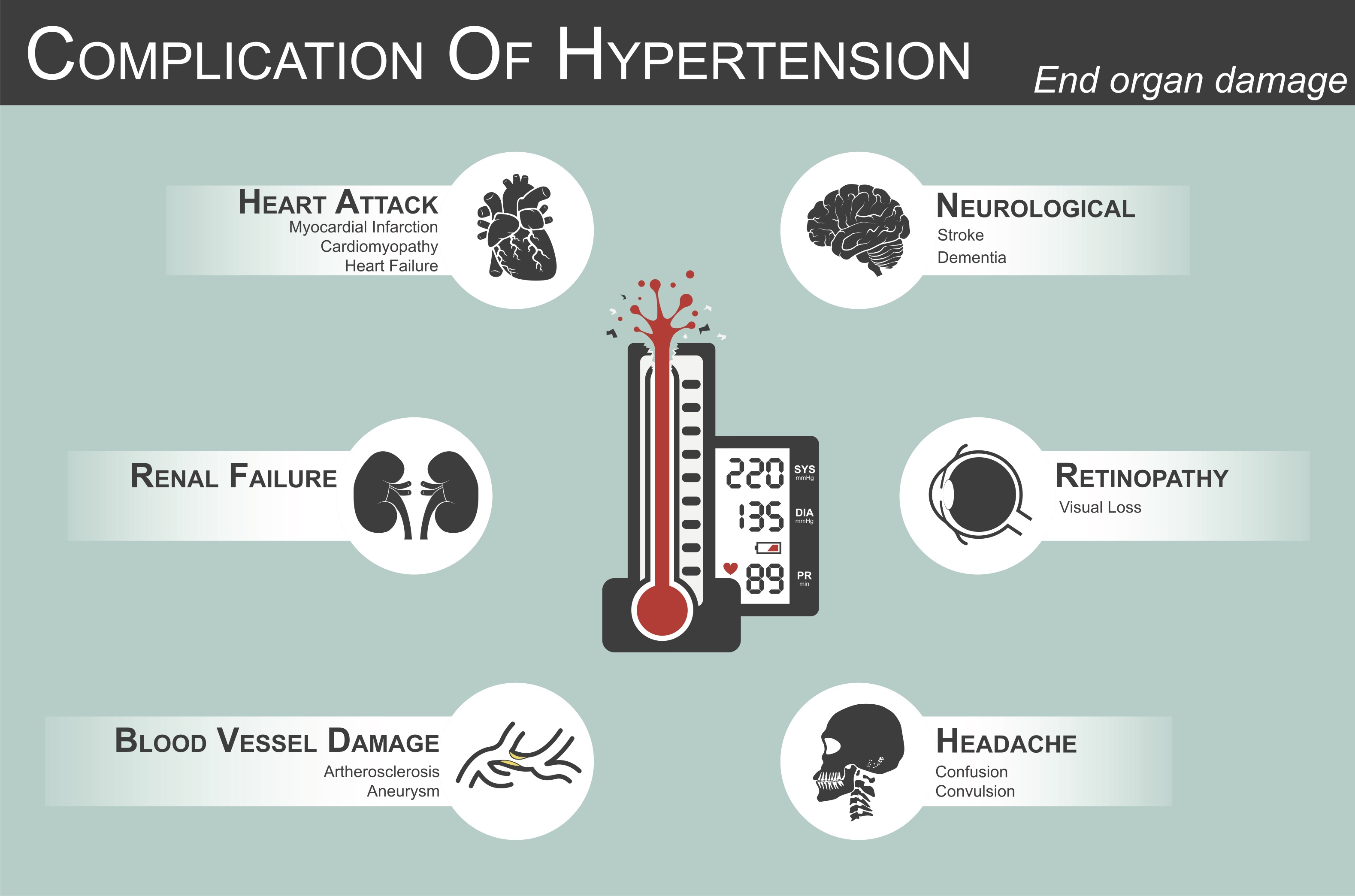Hypertension and Marijuana Information: Treat Hypertension With Cannabis