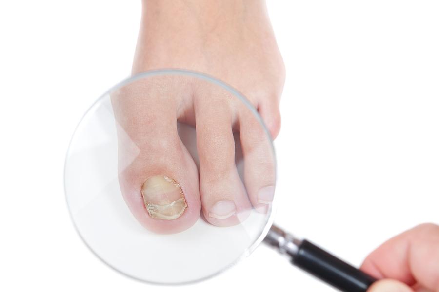 Nail Patella Syndrome and Marijuana Information: Treat HOOD Syndrome With Cannabis