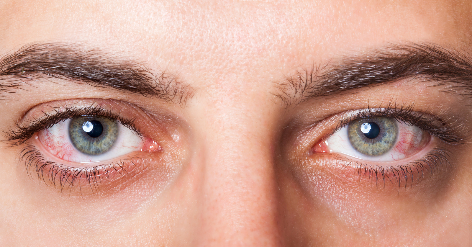Conjunctivitis and Marijuana Information: Treat Conjunctivitis With Cannabis