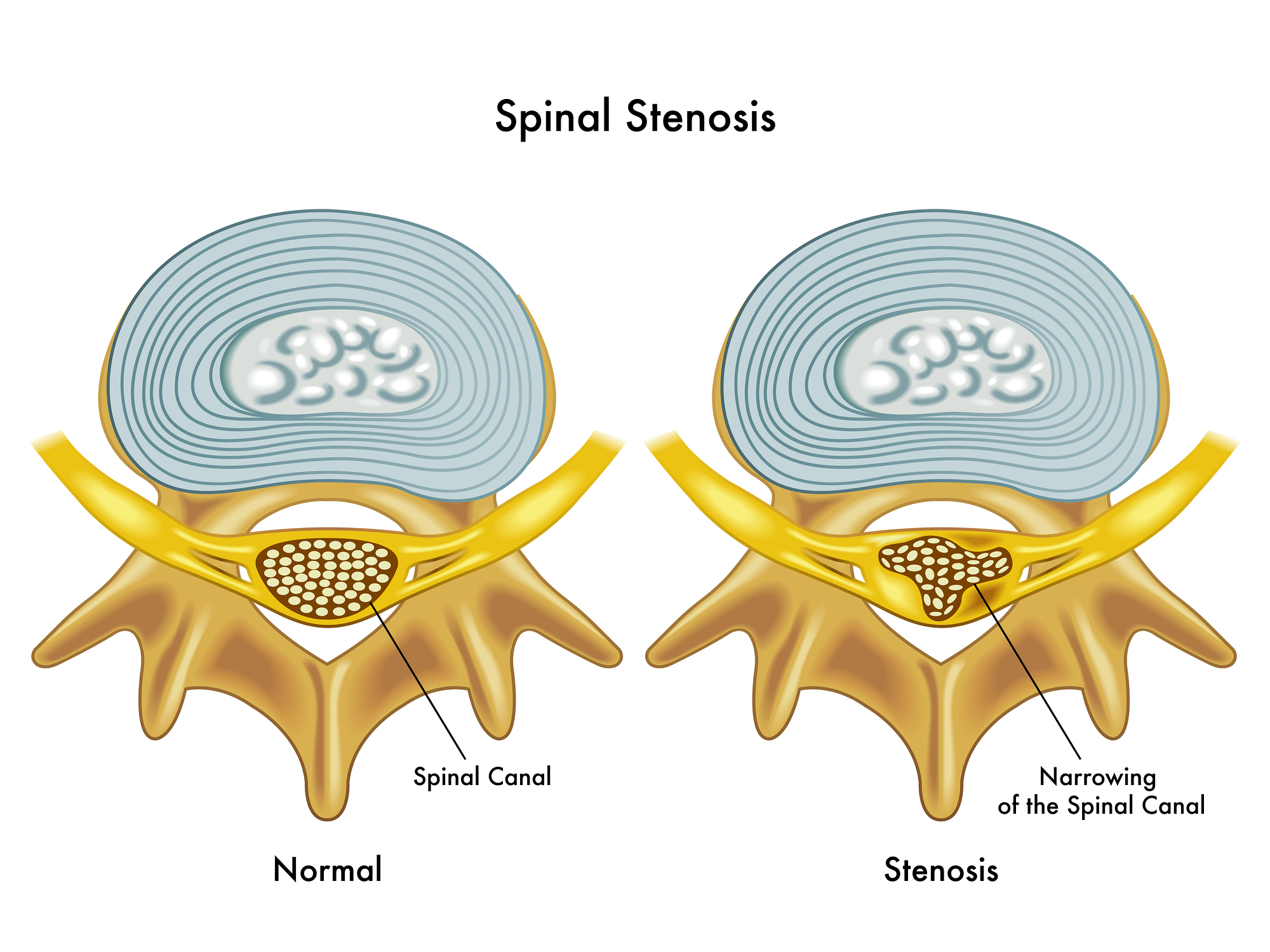 Spinal Stenosis and Marijuana Information: Treat Spinal Stenosis With Cannabis