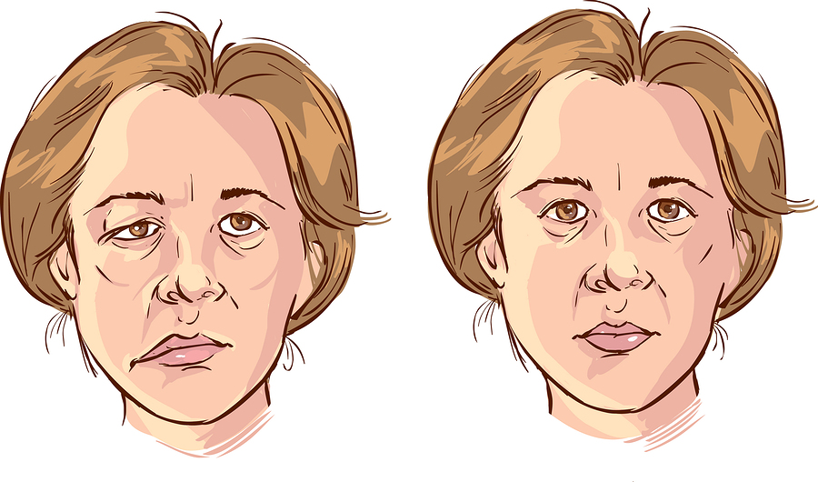 Bell's Palsy and Marijuana Information: Treat Bell's Palsy With Cannabis