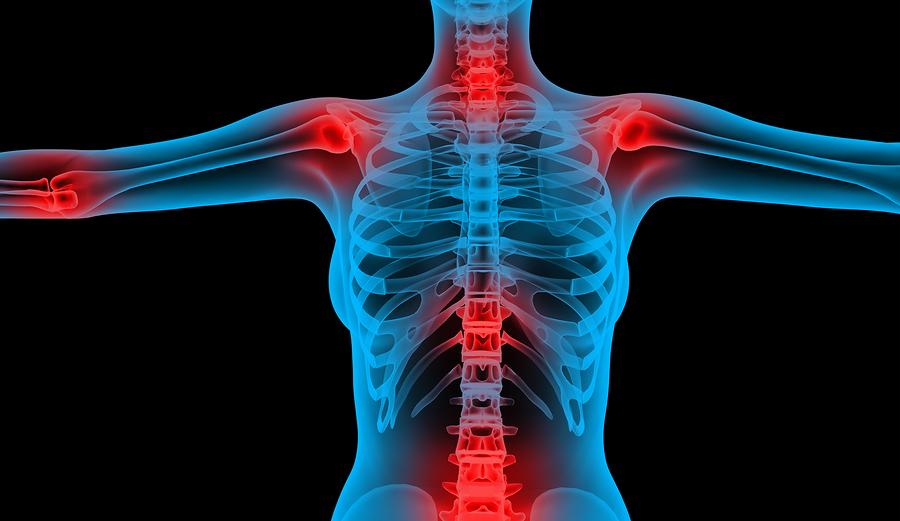 Osteoarthritis and Marijuana Information: Treat Osteoarthritis With Cannabis