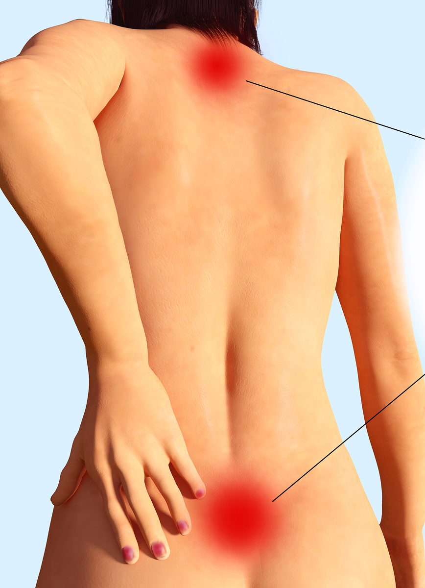 Back Pain and Marijuana Information: Treat Back Pain With Cannabis