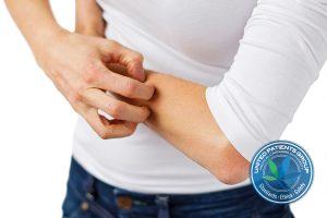 Eczema, dermatitis and itchy skin problem