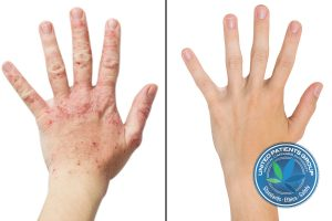 Real Photo Girl's Hand, The Patient With Eczema Before And A