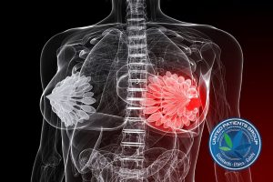 bigstock-breast-cancer-illustration-7845056-768x576